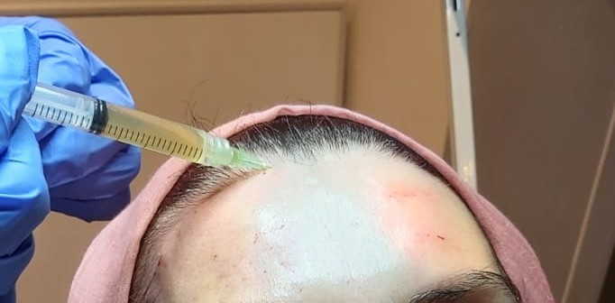 Platelet Rich Plasma treatment at Crewe Hair and Skin Clinic