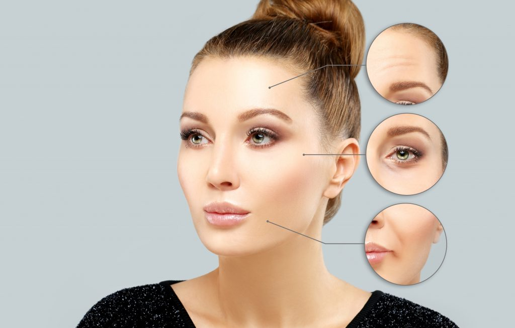 Botox and filler injection sites
