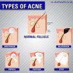 Acne - Types
