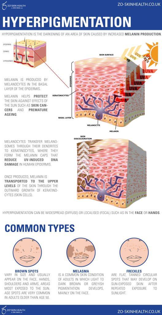 Pigmentation causes