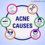 Acne causes