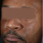 After Hyperpigmentation 3 Rejuvenating Peels including 2 peels that were layered with Brightening Peel