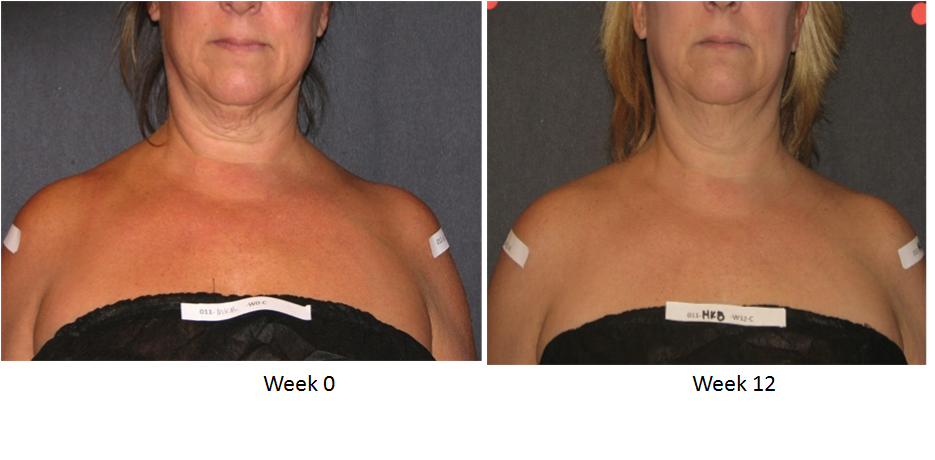 Skin Active Triple Firming Neck Cream Before and After 2