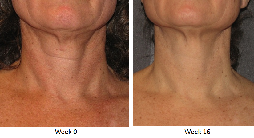 Skin Active Triple Firming Neck Cream Before and After 3