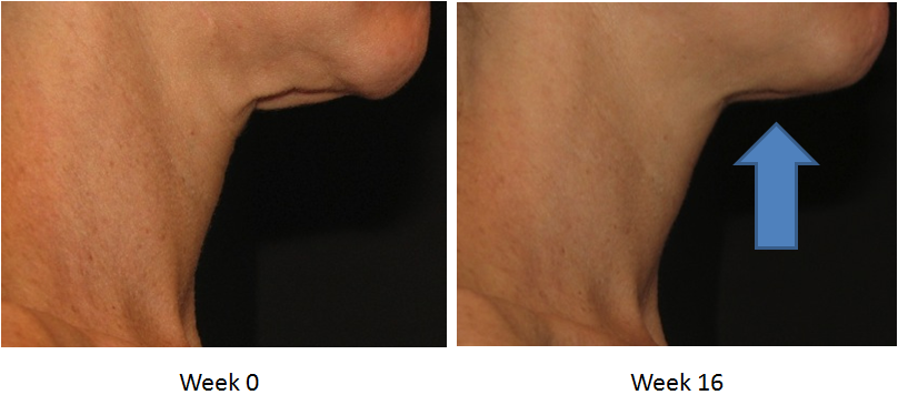 Skin Active Triple Firming Neck Cream Before and After 4