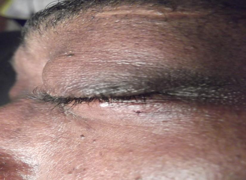 Dermatosis papulosa nigra after electrolysis