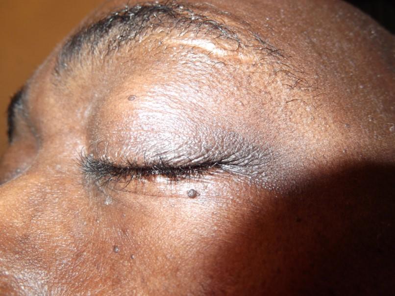 Dermatosis papulosa nigra before electrolysis