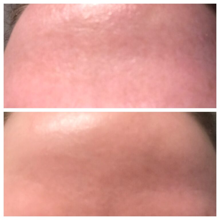 WOW fusion before and after for open pores