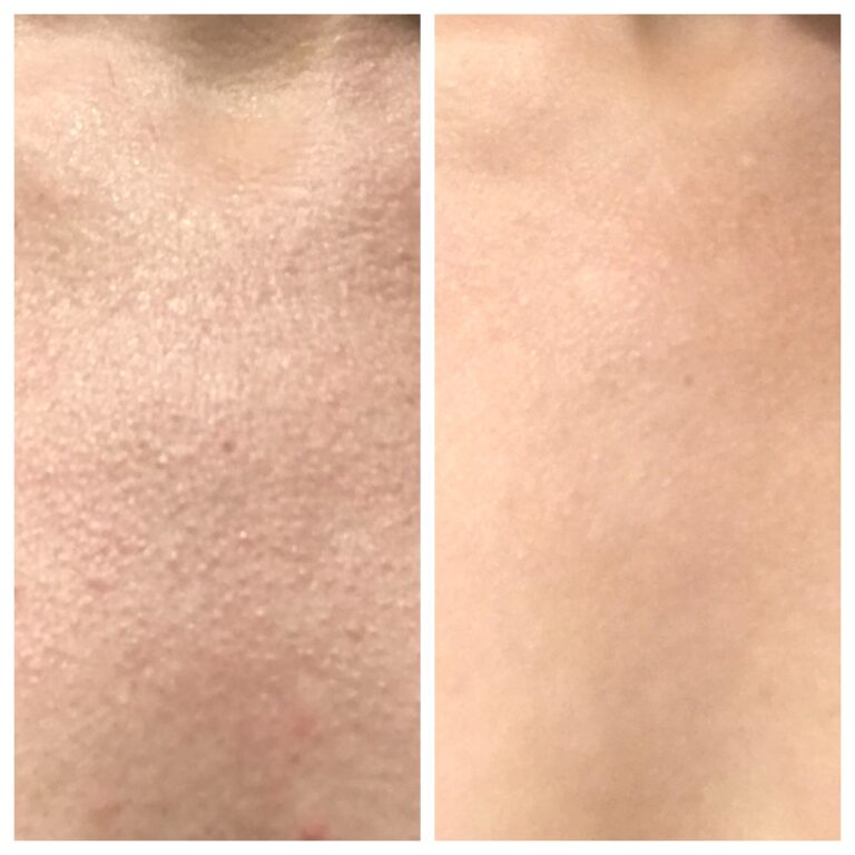 WOW fusion  before and after on the chest