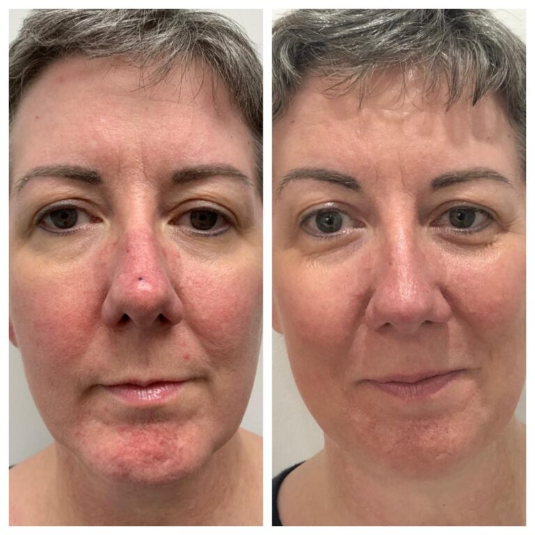 WOW fusion for rosacea, before and at 5 weeks