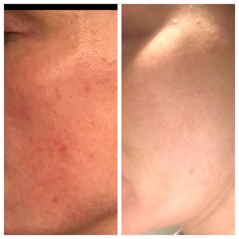 WOW fusion before and after for rosacea
