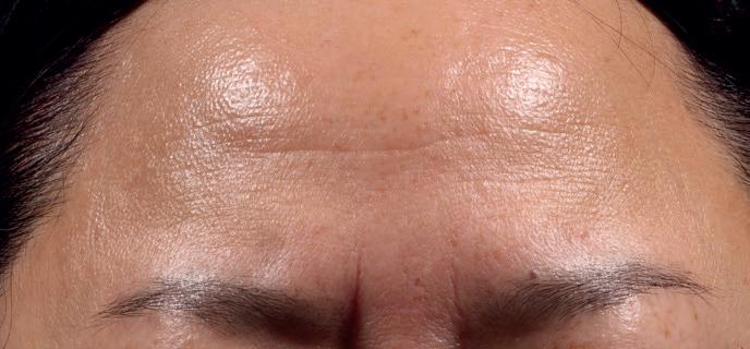 Retinol Peel Forehead Baseline 0 Weeks